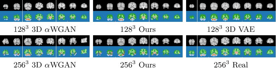 Figure 4 for Modelling the Distribution of 3D Brain MRI using a 2D Slice VAE