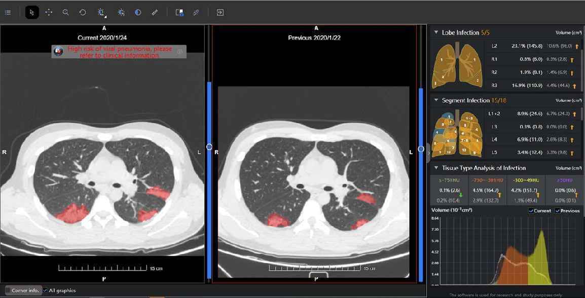 Figure 2 for Review of Artificial Intelligence Techniques in Imaging Data Acquisition, Segmentation and Diagnosis for COVID-19
