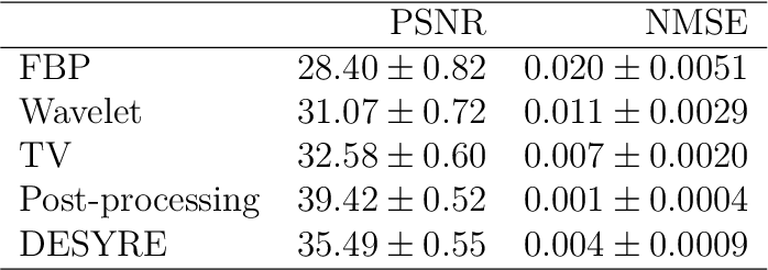 Figure 4 for Deep synthesis regularization of inverse problems