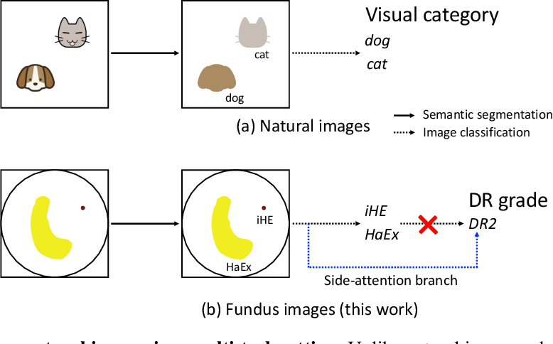 Figure 1 for Learn to Segment Retinal Lesions and Beyond