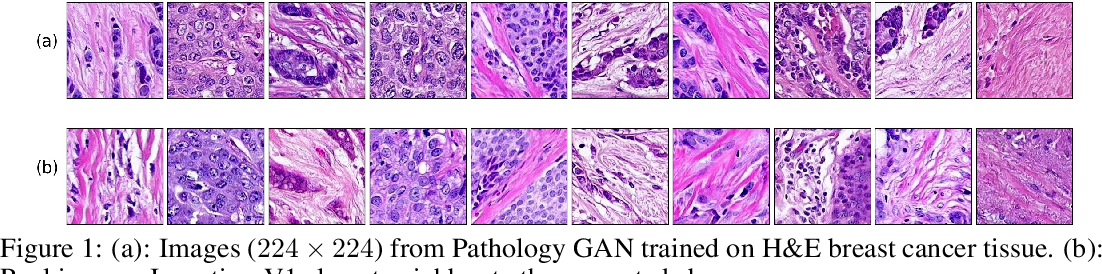 Figure 1 for Pathology GAN: Learning deep representations of cancer tissue
