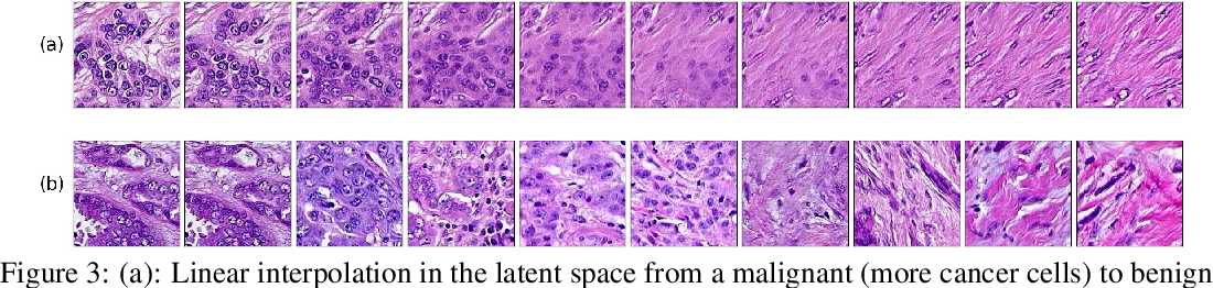 Figure 4 for Pathology GAN: Learning deep representations of cancer tissue