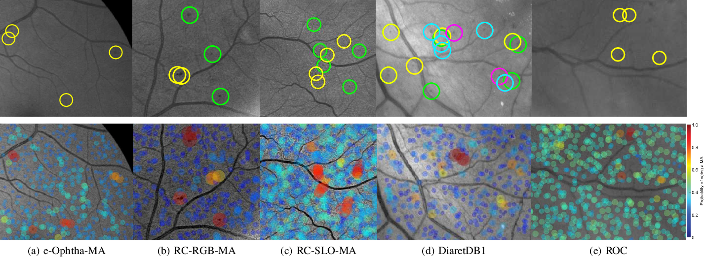 Figure 3 for Retinal Microaneurysms Detection using Local Convergence Index Features