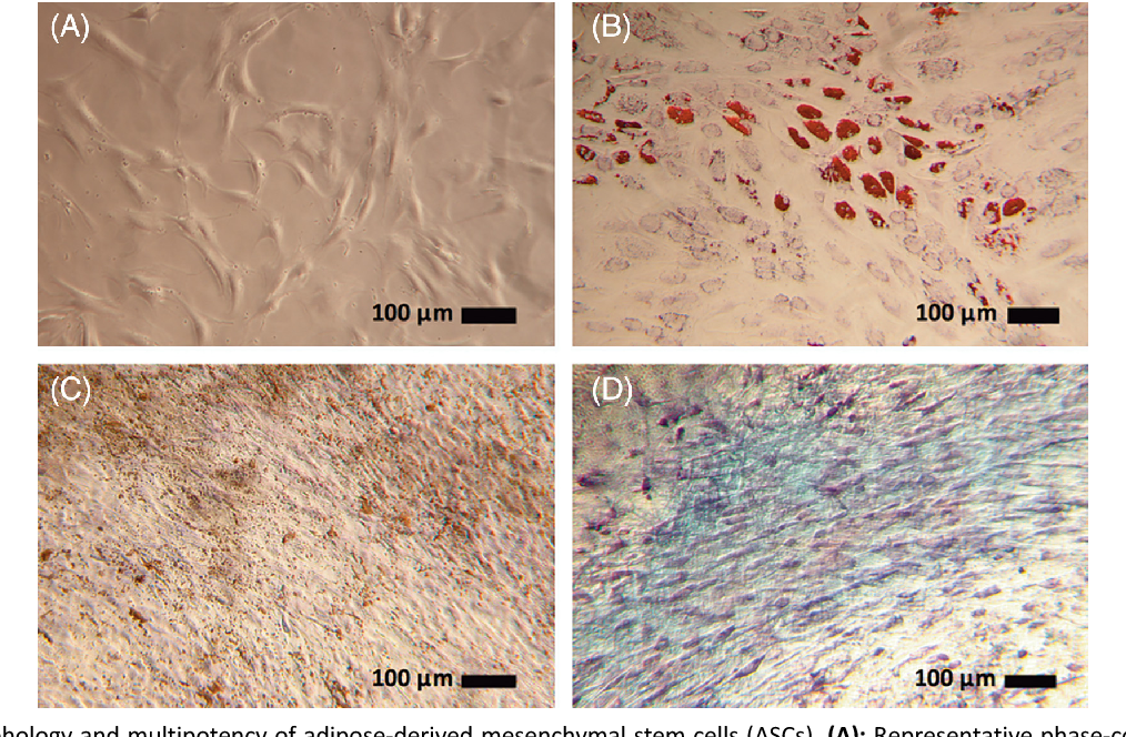 Figure 1. Morphology and multipotency of adipose-derived mesenchymal stem cells (ASCs). (A): Representative phase-contrast photomicrograph of ASCs adhered to tissue-culture polystyrene (N = 3), obtained with an objective magnification of ×4. (B): Oil Red O staining of ASCs cultured in adipogenic differentiation medium for 14 days (N = 3). Red staining is indicative of triglycerides and lipids. (C): von Kossa staining of ASCs cultured in osteogenic differentiation medium for 28 days (N = 3). Brown staining is indicative of mineralization. (D): Alcian Blue staining of ASCs cultured in chondrogenic differentiation medium for 28 days (N = 3). Blue staining is indicative of proteoglycans. (B–D): Positive staining was not observed in unstimulated ASC controls (data not shown). Representative photomicrographs were taken by bright-field light microscopy using an objective magnification of ×4.