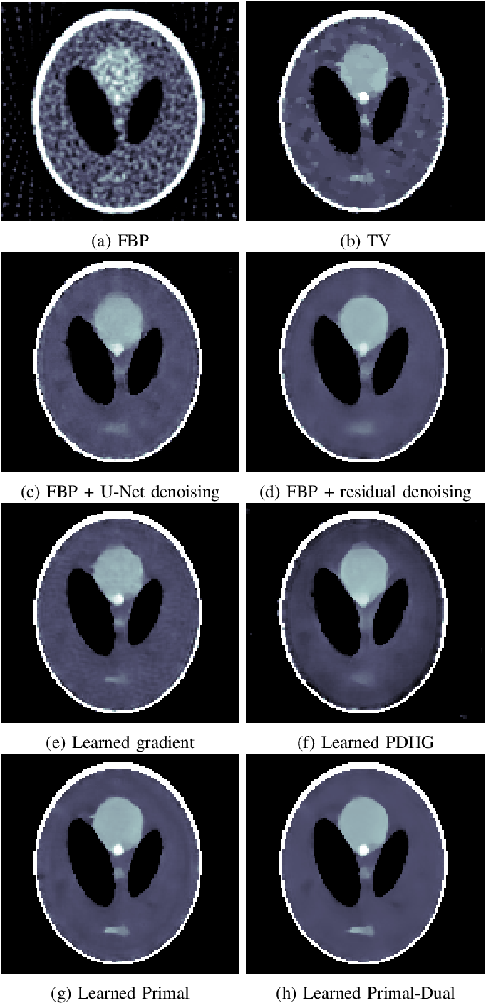 Figure 3 for Learned Primal-dual Reconstruction