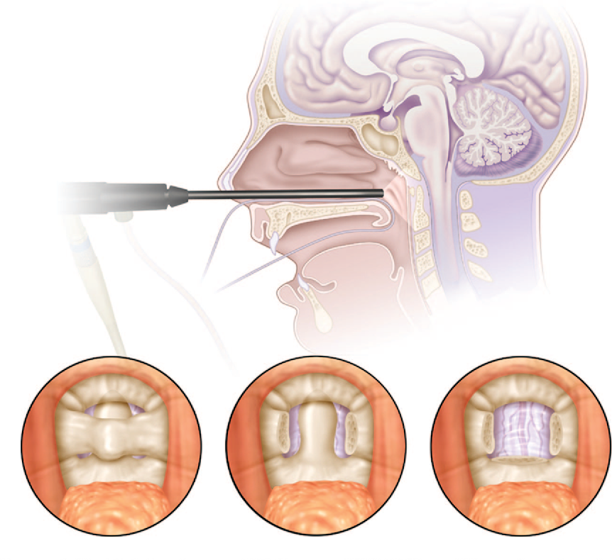 Endonasal Endoscopic Resection Of An Os Odontoideum To Decompress