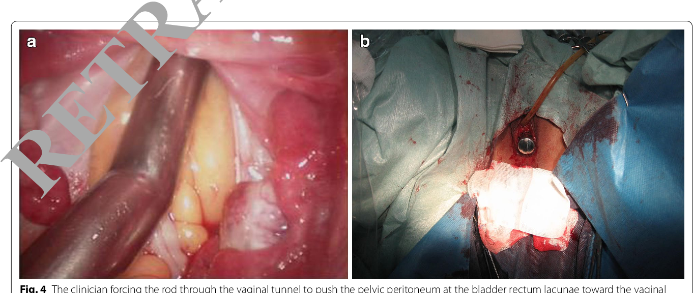 Fig. 4 The clinician forcing the rod through the vaginal tunnel to push the pelvic peritoneum at the bladder rectum lacunae toward the vaginal opening