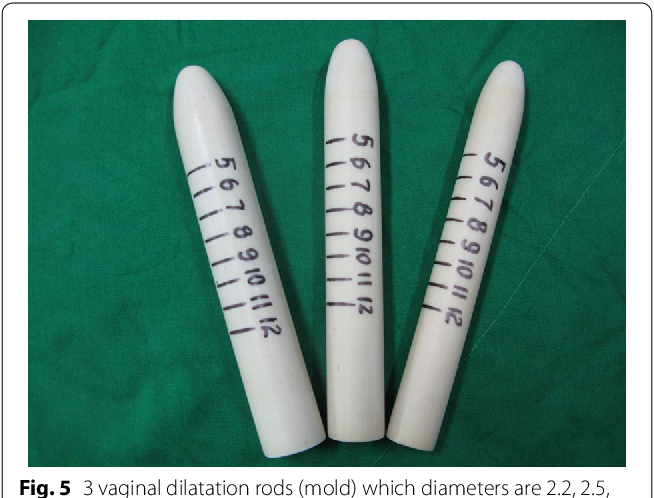 Fig. 5 3 vaginal dilatation rods (mold) which diameters are 2.2, 2.5, 2.8 cm, length is 20 cm (use after operation)
