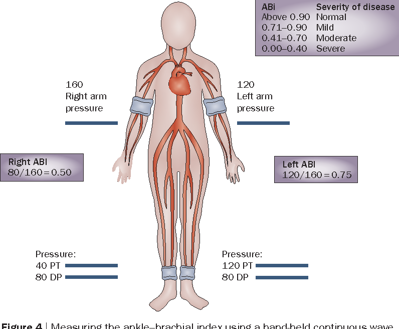 Figure 4 from Peripheral artery disease. Part 1: clinical evaluation ...