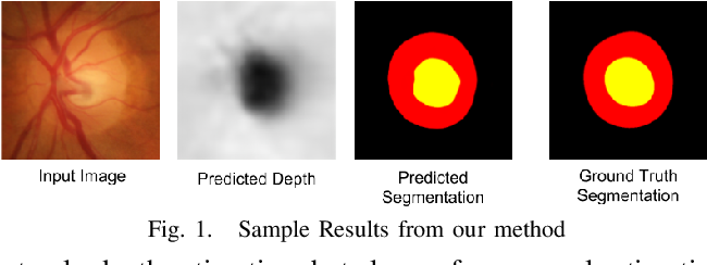 Figure 1 for Monocular Retinal Depth Estimation and Joint Optic Disc and Cup Segmentation using Adversarial Networks
