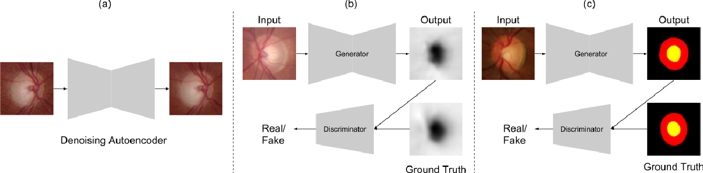 Figure 2 for Monocular Retinal Depth Estimation and Joint Optic Disc and Cup Segmentation using Adversarial Networks