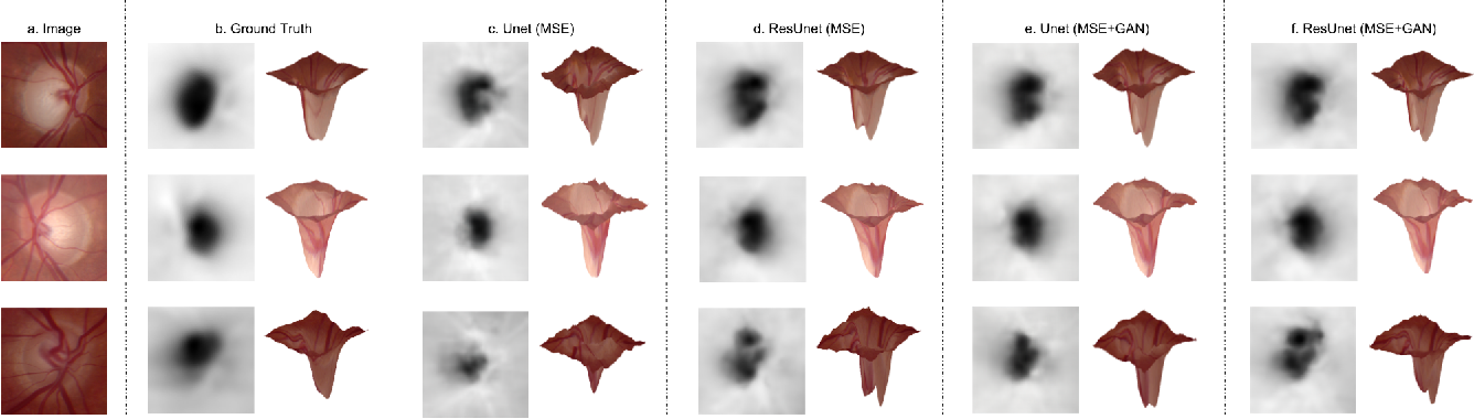 Figure 3 for Monocular Retinal Depth Estimation and Joint Optic Disc and Cup Segmentation using Adversarial Networks