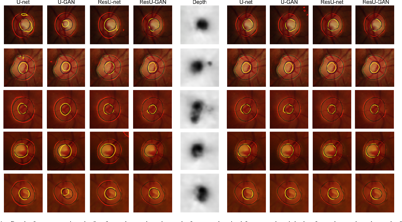 Figure 4 for Monocular Retinal Depth Estimation and Joint Optic Disc and Cup Segmentation using Adversarial Networks