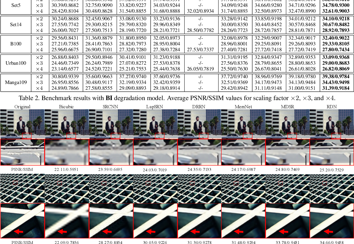 Figure 4 for Residual Dense Network for Image Super-Resolution