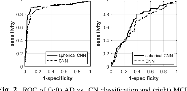 Figure 3 for Discriminative analysis of the human cortex using spherical CNNs - a study on Alzheimer's disease diagnosis