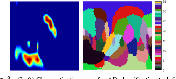 Figure 4 for Discriminative analysis of the human cortex using spherical CNNs - a study on Alzheimer's disease diagnosis
