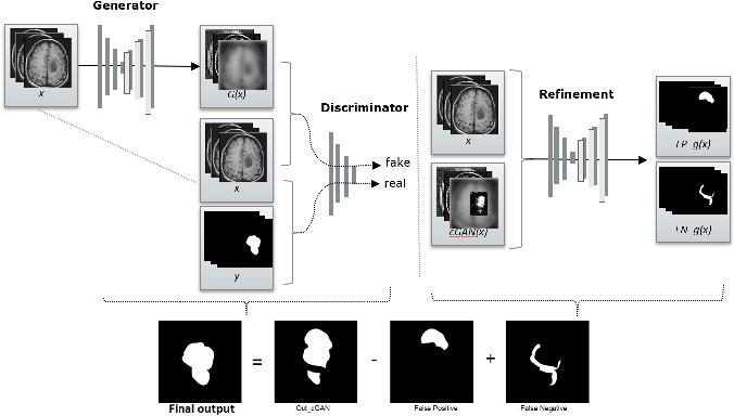 Figure 1 for Conditional Generative Refinement Adversarial Networks for Unbalanced Medical Image Semantic Segmentation