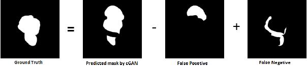 Figure 3 for Conditional Generative Refinement Adversarial Networks for Unbalanced Medical Image Semantic Segmentation