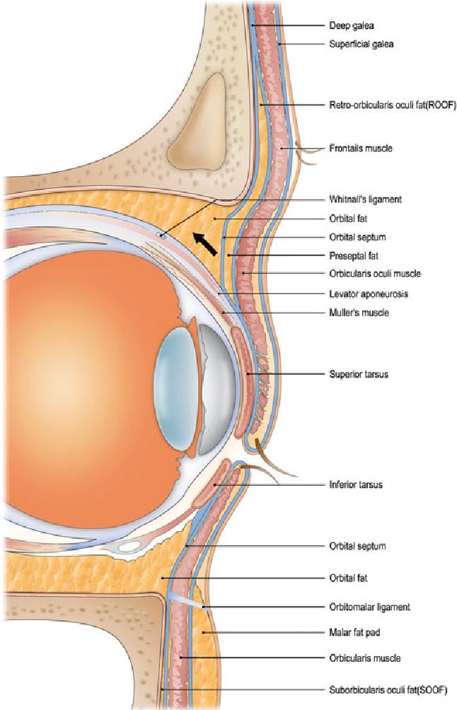 Correction Of Superior Sulcus Deformity With Orbital Fat Anatomic