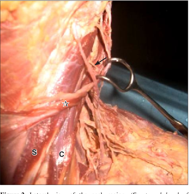 Cleido-occipital platysma muscle : a rare variant of ...