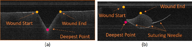 Figure 4 for Toward Autonomous Robotic Micro-Suturing using Optical Coherence Tomography Calibration and Path Planning