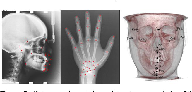Figure 2 for Semi-supervised Anatomical Landmark Detection via Shape-regulated Self-training