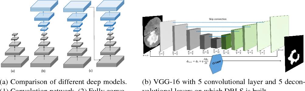 Figure 3 for Deep Recurrent Level Set for Segmenting Brain Tumors