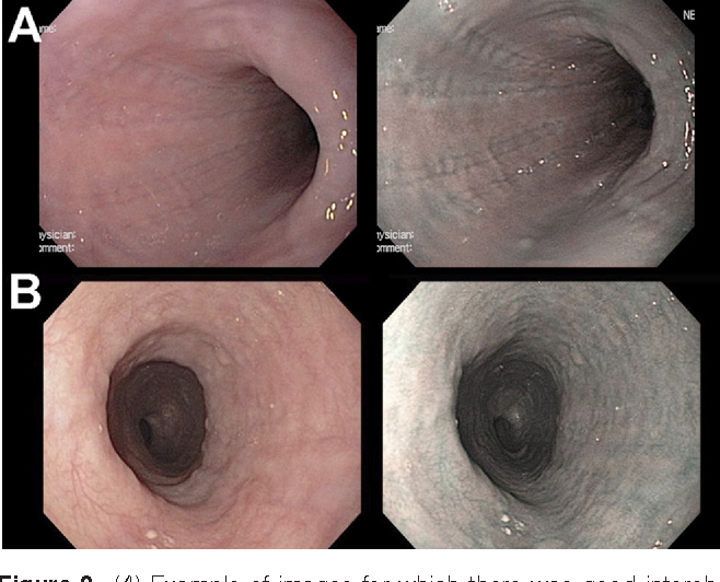 Variable Reliability Of Endoscopic Findings With White Light