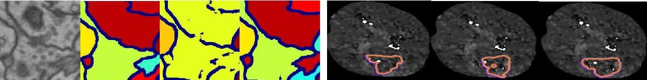 Figure 1 for High-level Prior-based Loss Functions for Medical Image Segmentation: A Survey