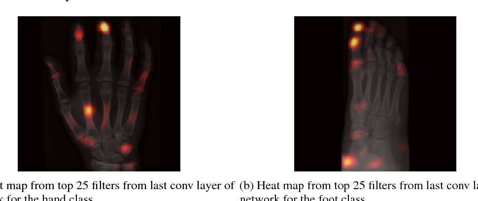 Figure 3 for Understanding Anatomy Classification Through Attentive Response Maps