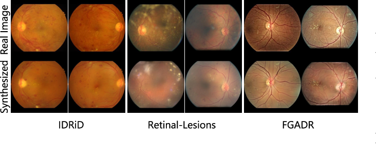 Figure 2 for Explainable Diabetic Retinopathy Detection and Retinal Image Generation
