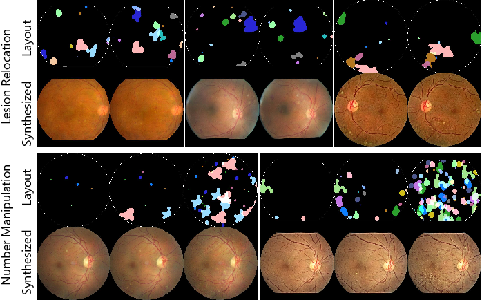 Figure 3 for Explainable Diabetic Retinopathy Detection and Retinal Image Generation