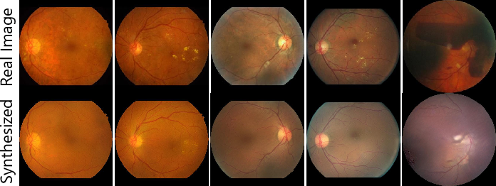 Figure 4 for Explainable Diabetic Retinopathy Detection and Retinal Image Generation