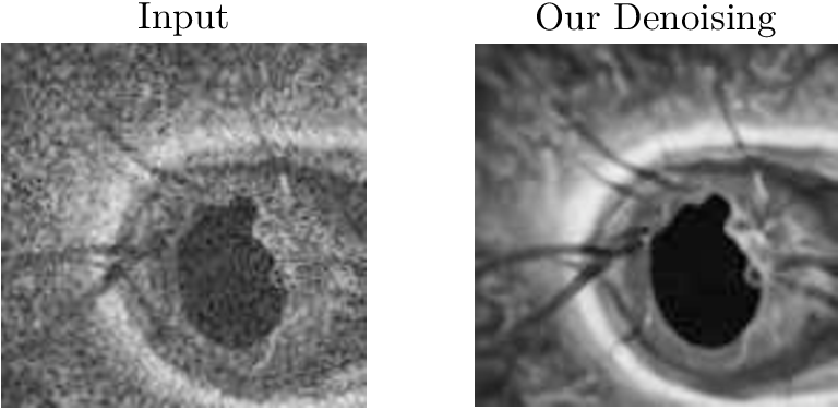 Figure 1 for Self-supervised Denoising via Diffeomorphic Template Estimation: Application to Optical Coherence Tomography