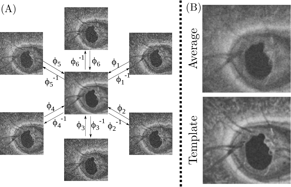 Figure 3 for Self-supervised Denoising via Diffeomorphic Template Estimation: Application to Optical Coherence Tomography