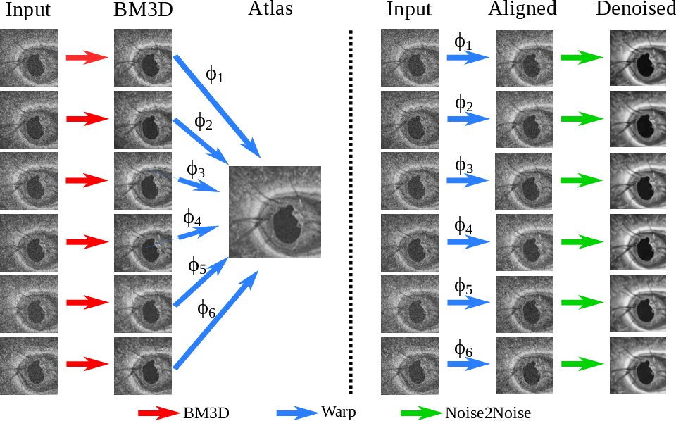 Figure 4 for Self-supervised Denoising via Diffeomorphic Template Estimation: Application to Optical Coherence Tomography