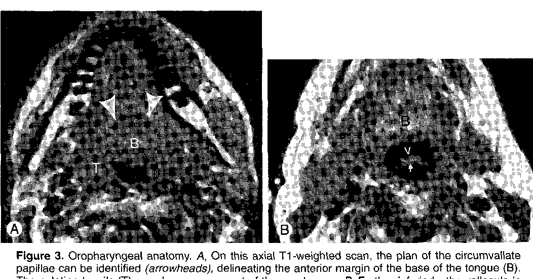 Figure 3 from Oral cavity and pharynx. - Semantic Scholar