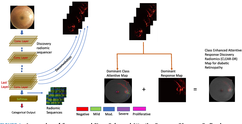 Figure 1 for Discovery Radiomics with CLEAR-DR: Interpretable Computer Aided Diagnosis of Diabetic Retinopathy