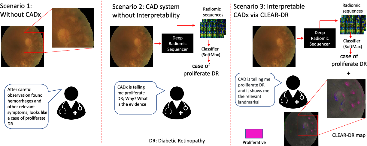 Figure 2 for Discovery Radiomics with CLEAR-DR: Interpretable Computer Aided Diagnosis of Diabetic Retinopathy