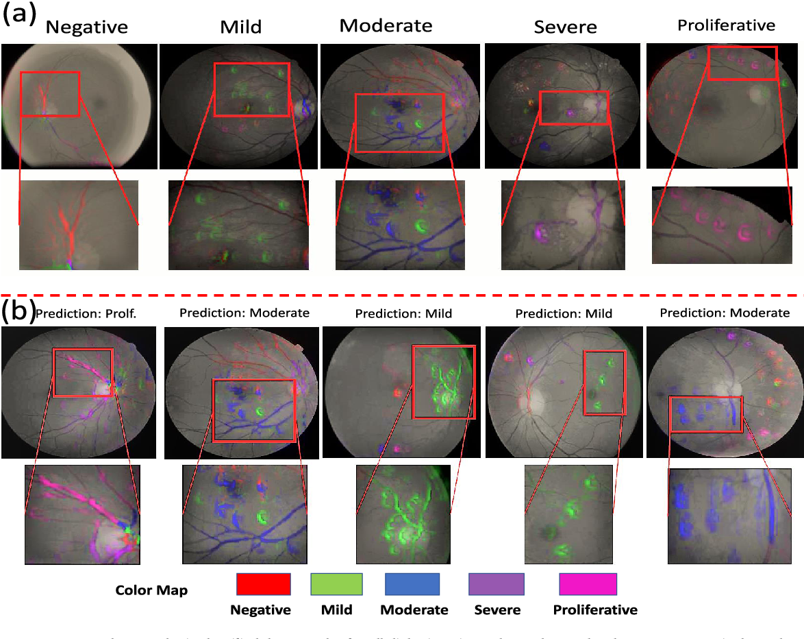 Figure 4 for Discovery Radiomics with CLEAR-DR: Interpretable Computer Aided Diagnosis of Diabetic Retinopathy