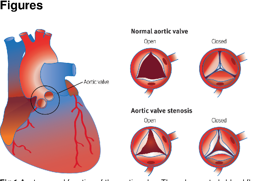 Figure 1 From Aortic Stenosis Diagnosis And Management Semantic