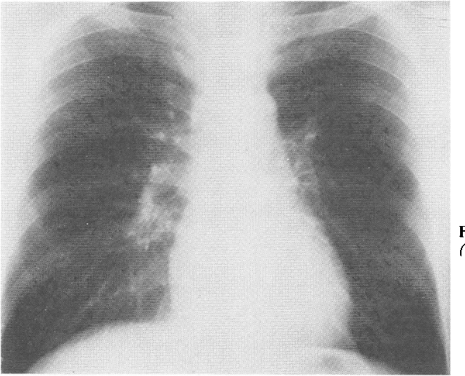 Fig 9 Chest x rayfilm showing small rounded opacities (profusion 1/2, shape size p/q).