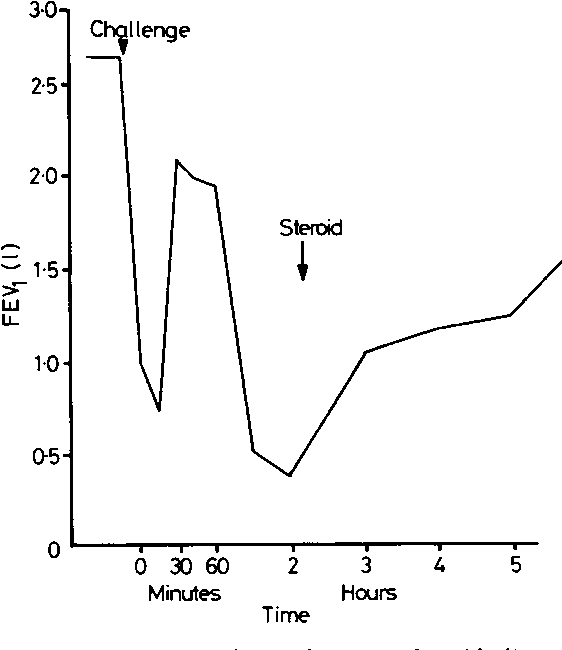 Fig 5 Combined immediate and non-immediate (dual) asthmatic reaction to cobalt (1% CoCI2).