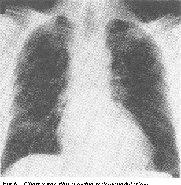 Fig 6 Chest x rayfilm showing reticulonodulations (profusion 2/2, shape size s/q).