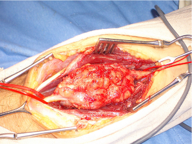 Fig. 1 Intraoperative image of second intervention on the recidive that involved the median nerve. The lesion was removed en bloc