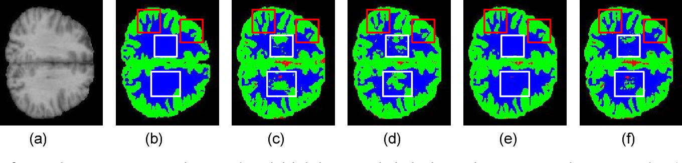 Figure 3 for U-SegNet: Fully Convolutional Neural Network based Automated Brain tissue segmentation Tool