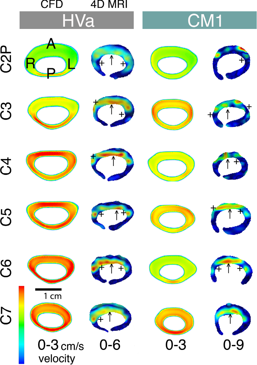 Figure 6 from Comparison of 4D Phase-Contrast MRI Flow