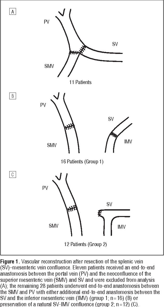 Inferior Mesenteric Vein Gallery - human anatomy organs diagram