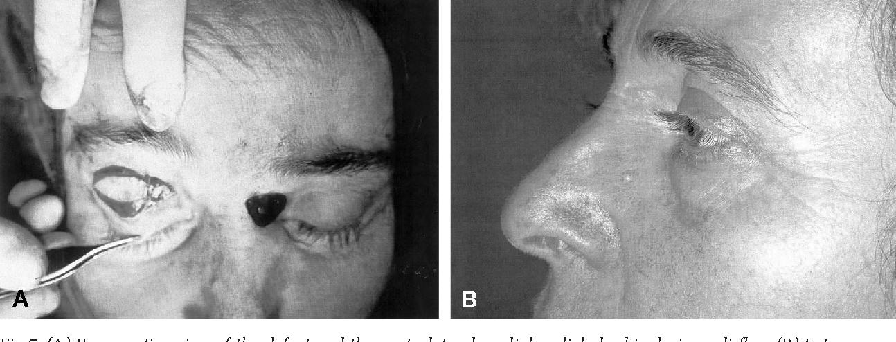 Figure 7 From Medial Pedicled Orbicularis Oculi Flap Semantic Scholar