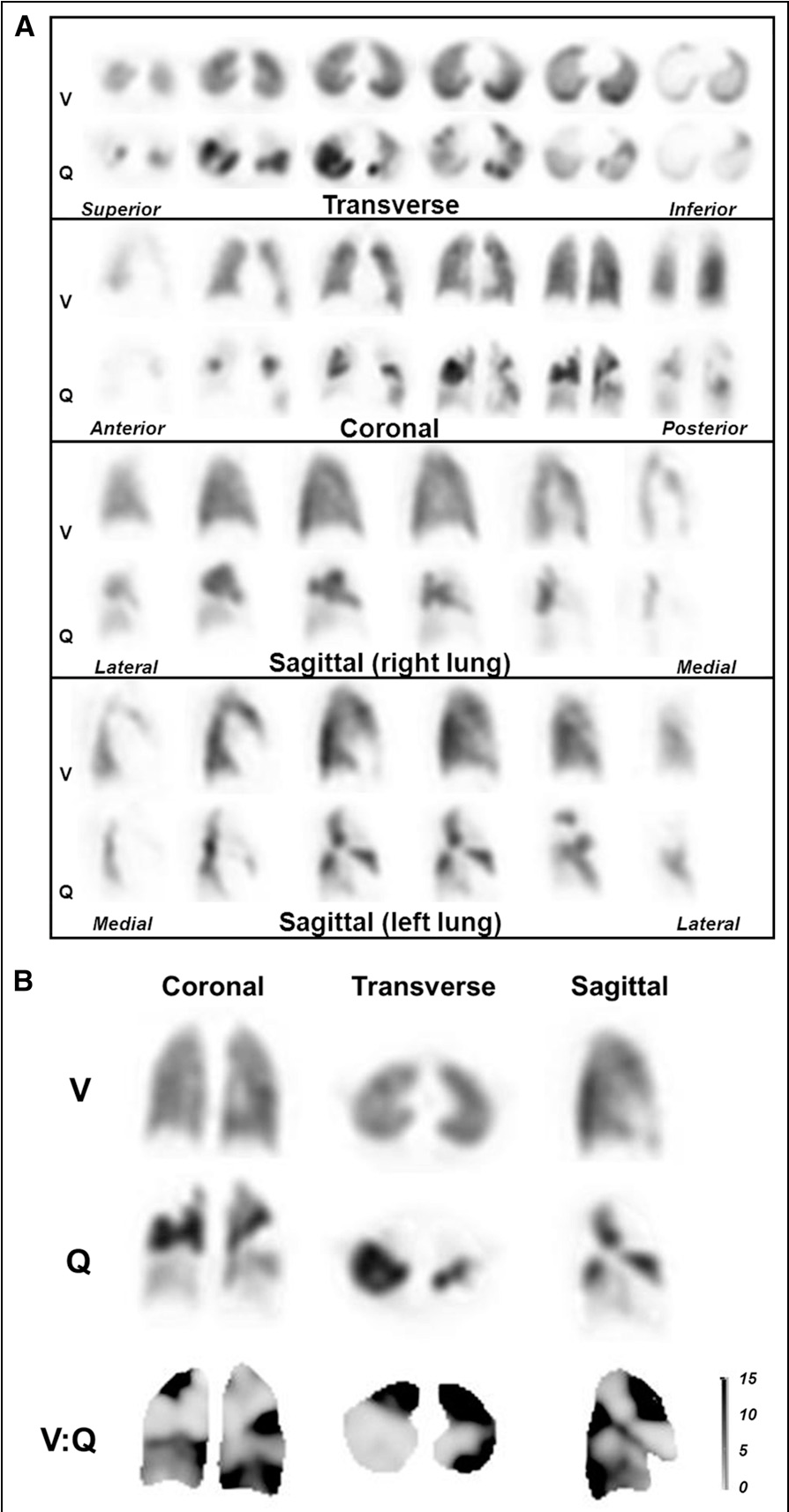 figure 1 from v/q scanning using spect and spect/ct. - semantic scholar